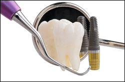 Best Low cost Dental Implants in Panipat, Haryana, India at Navdeep Hospital, 9416500112